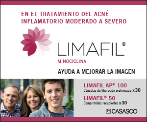 Casasco - Limafil